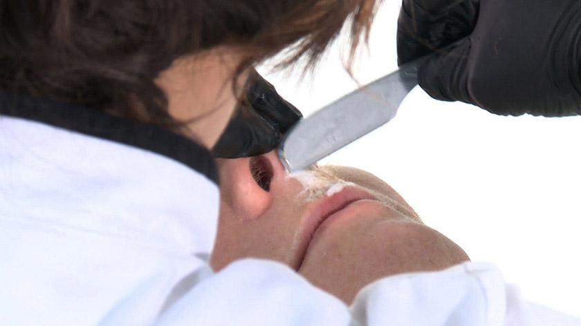 Shaving across the upper lip